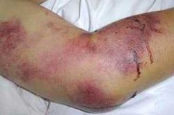 درباره بیماری CCHF (تب کریمه کنگو ) بیشتر بدانیم